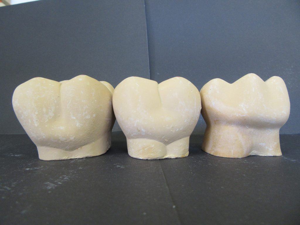 Molars