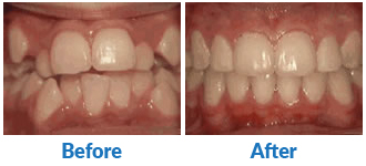 Dr-Kendra-Remiongton-Treatments-crowding-of-the-teeth
