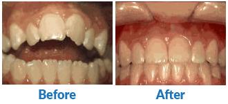 Dr-Kendra-Remiongton-Treatments-openbite