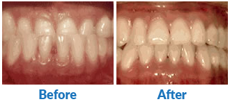 Underbite-Before-and-After-Treatments