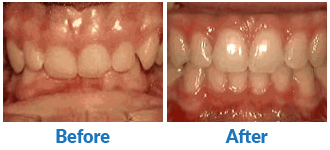 Dr-Kendra-Remiongton-Treatments-deep-overbite