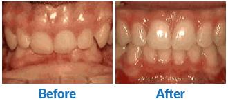 Dr-Kendra-Remiongton-Treatments-deep-overbite
