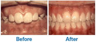 Dr-Kendra-Remiongton-Treatments-overbite