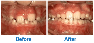 Dr-Kendra-Remiongton-Treatments-phase-1