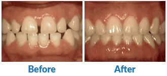 Dr-Kendra-Remiongton-Treatments-spacing-of-teeth