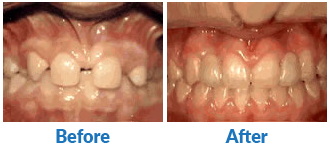 Dr-Kendra-Remiongton-Treatmentsmissing-lateral-incisors