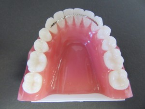 Lower Fixed Retainer