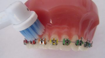 The Secrets to Good Toothbrushing with Braces