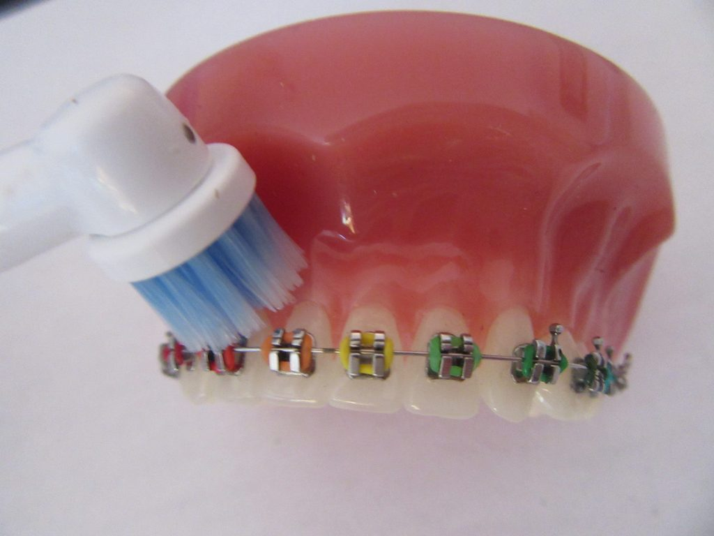 Toothbrushing with Braces