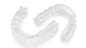 New Technology Update: Clear Aligner Treatment
