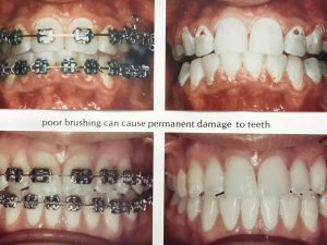 before and after of good and poor oral hygiene with braces